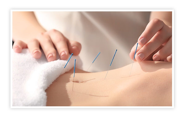 Edmonton Acupuncture Services